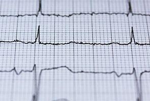 Kardiológiai Osztály